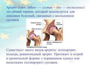 Что такое артрит