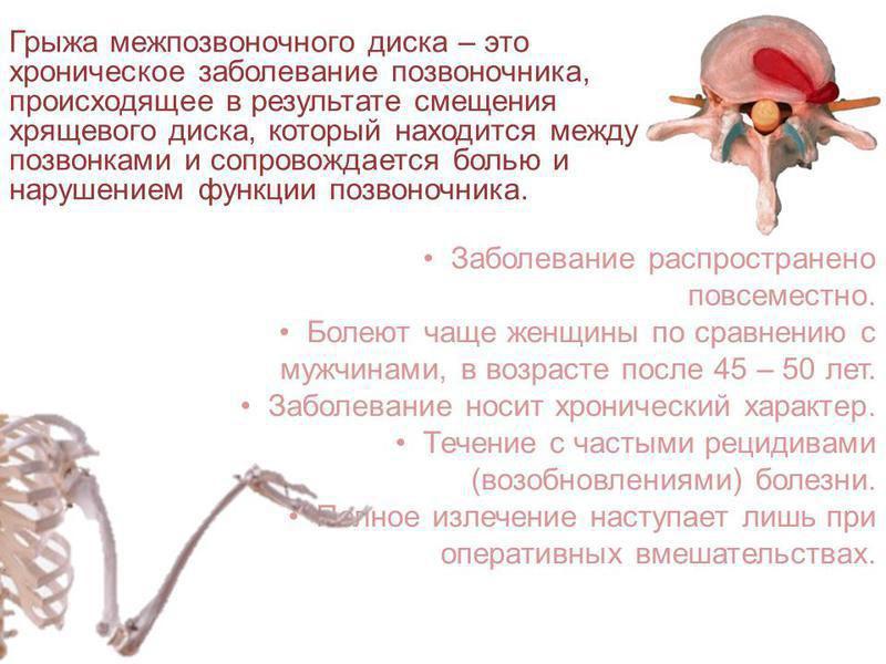 Что такое грыжа межпозвоночного диска