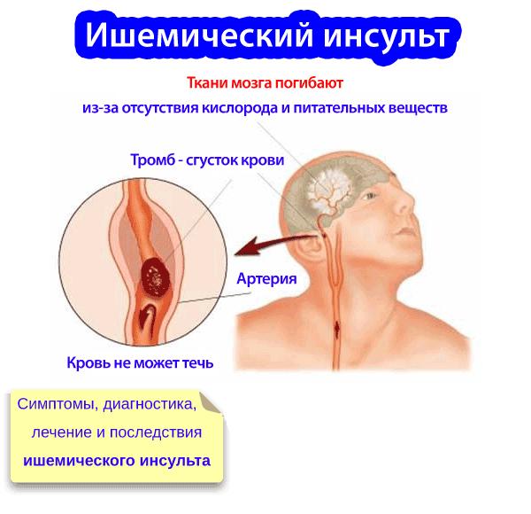 Что такое ишемический инсульт