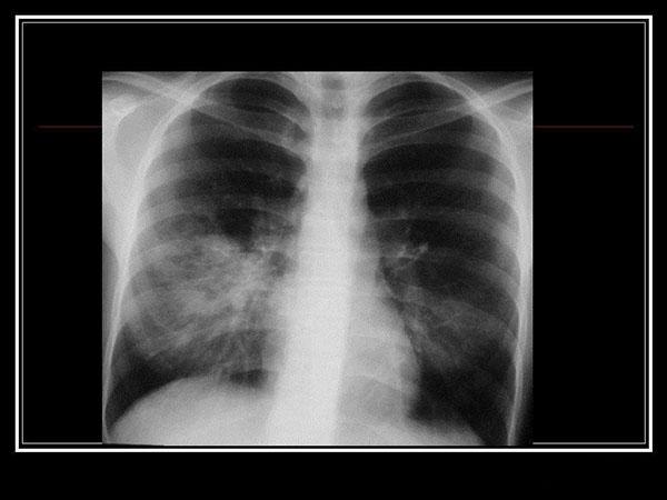 Атипичная микоплазменная пневмония на снимке
