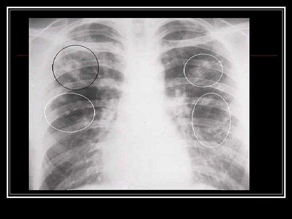 Атипичная хламидийная пневмония на рентгеновском снимке