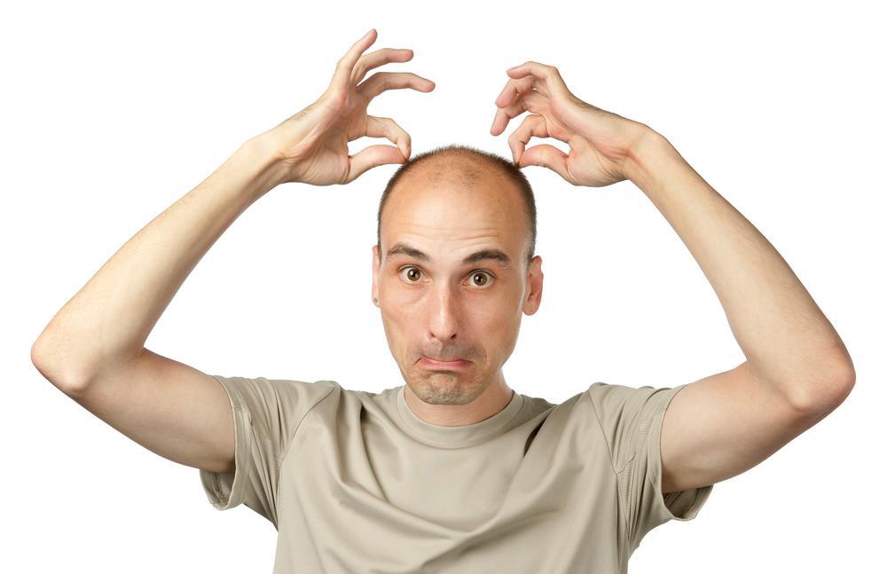 Выпадение волос: причины и лечение у мужчин