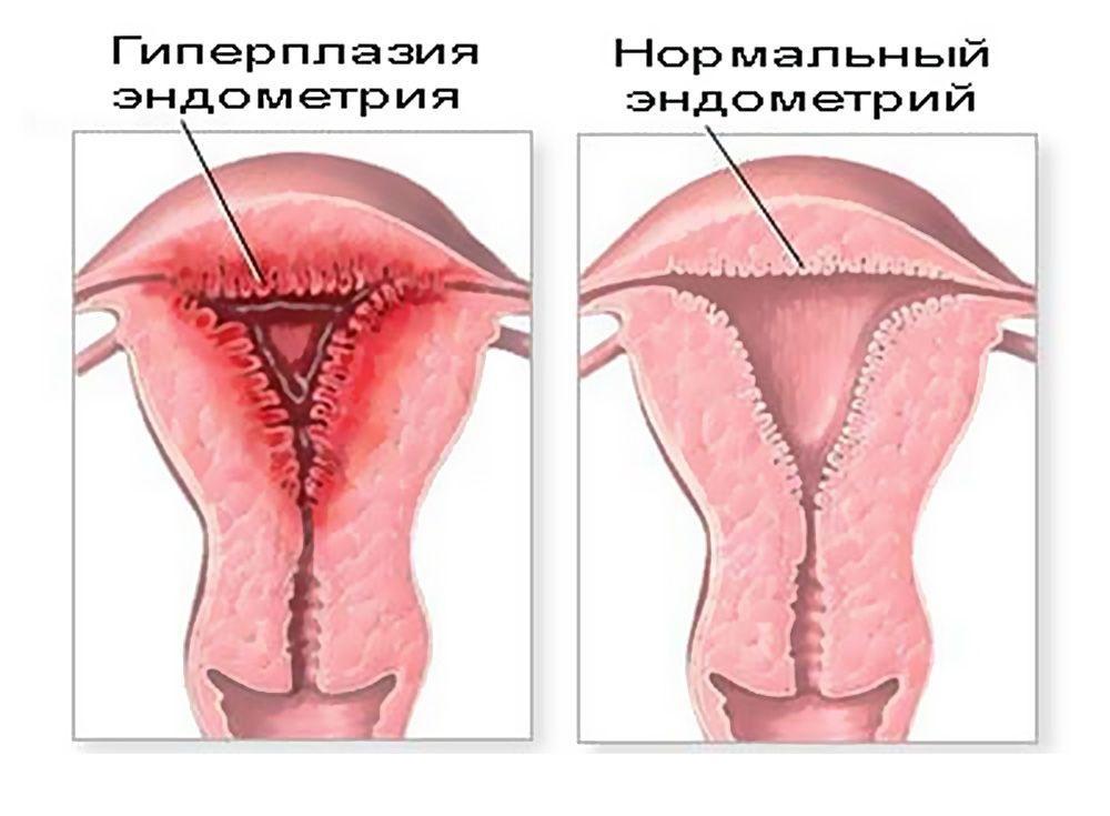 Гиперплазия и нормальный эндометрий