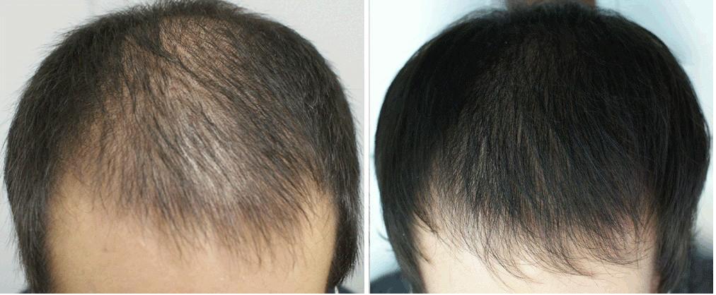 До и после вакуумного массажа волосистой части головы