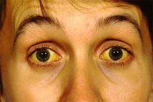 как можно заразиться глистами от человека