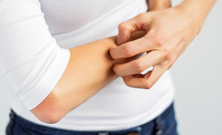 Зуд тела без сыпи: причины