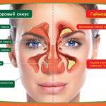 Как лечить гайморит без прокола