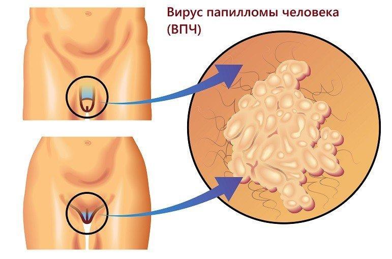 Как лечить папилломы на интимных местах