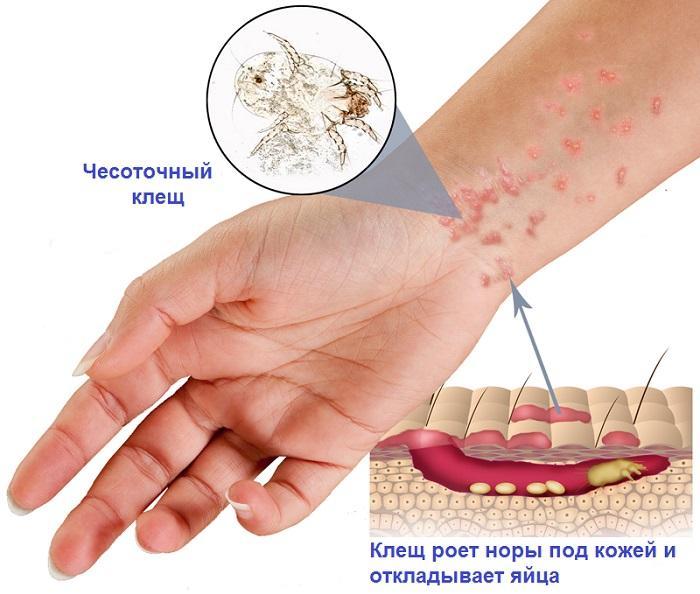 Лечение чесотки у человека