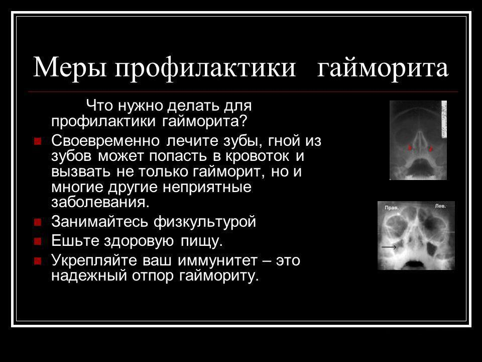 Меры профилактики гайморита