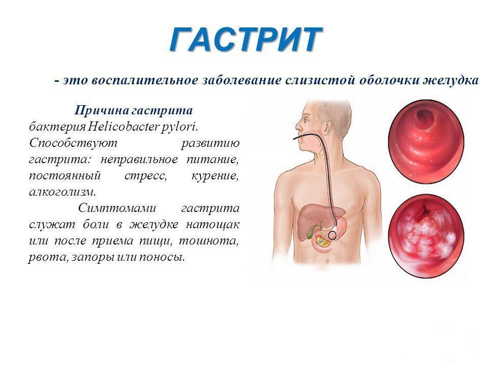 Определение и симптомы гастрита