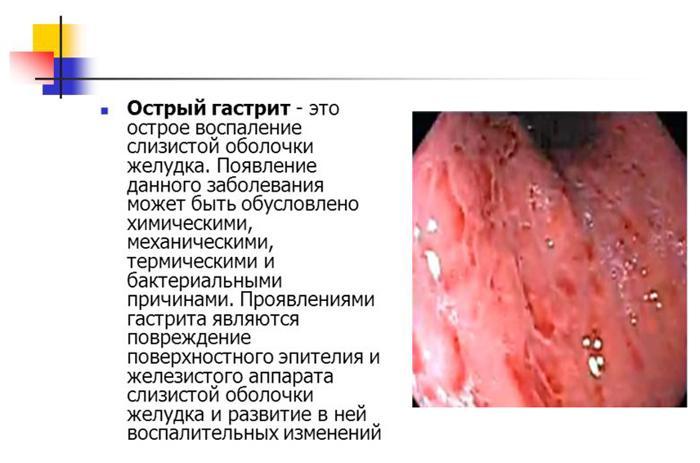 Острый гастрит - одна из возможных причин зуда в заднем проходе