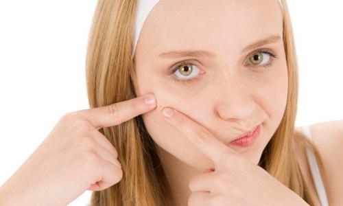 Подростковые прыщи у девочек: лечение и профилактика