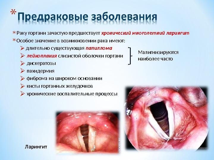Предраковые заболевания рака горла