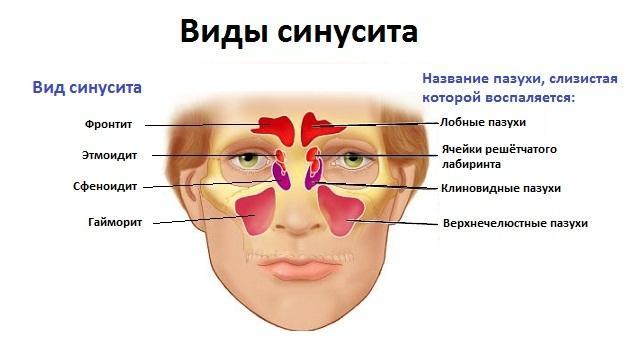 Признаки синусита у взрослых