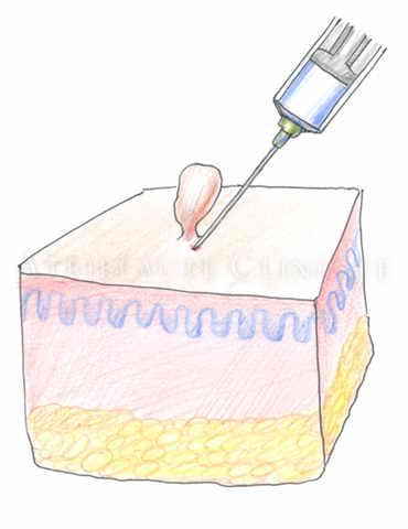 Радиоволновое удаление папиллом