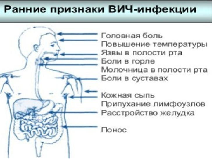 Ранние признаки ВИЧ-инфекции у мужчин
