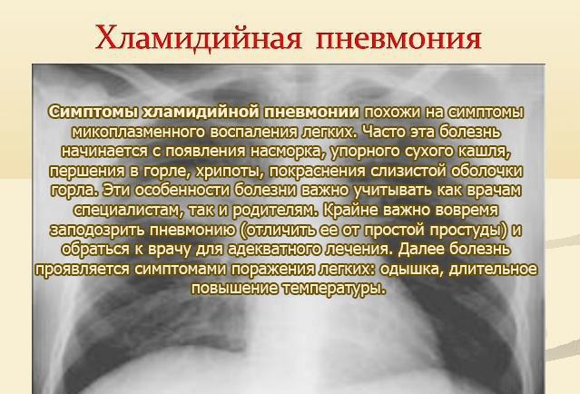 Симптомы хламидийной пневмонии
