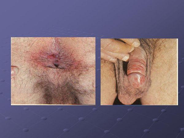 Сифилис у мужчин