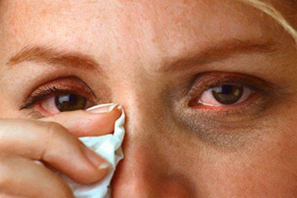 Слезящиеся глаза - один из типичных признаков краснухи