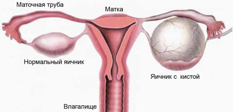 Схематичное изображение яичника с кистой