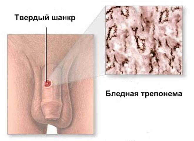 Твердый шанкр при сифилисе