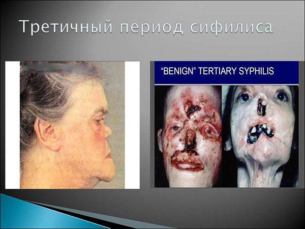 Третичный период сифилиса. Фото