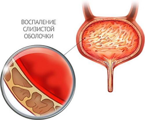 Цистит у беременных: чем лечить?