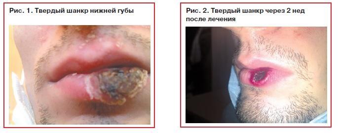 Шанкр нижней губы