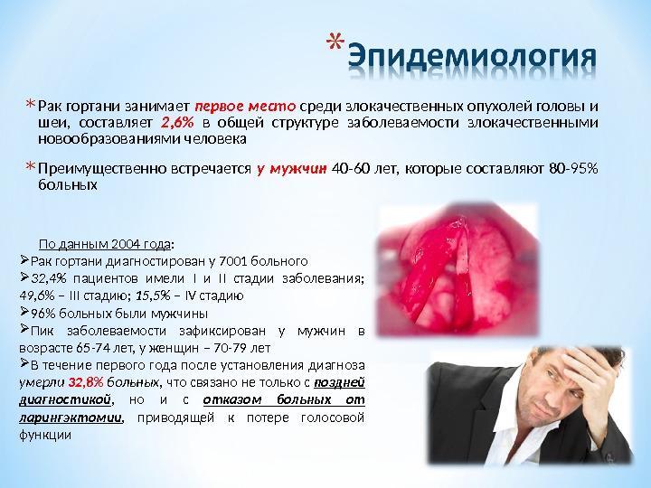 Эпидемиология рака гортани