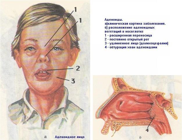 чем снять воспаление аденоидов