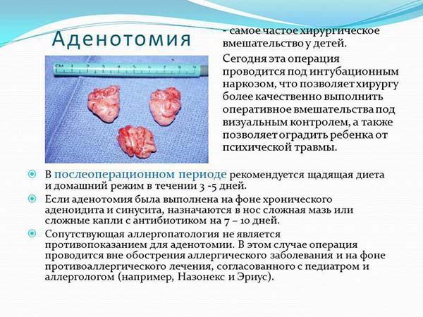Аденотомия