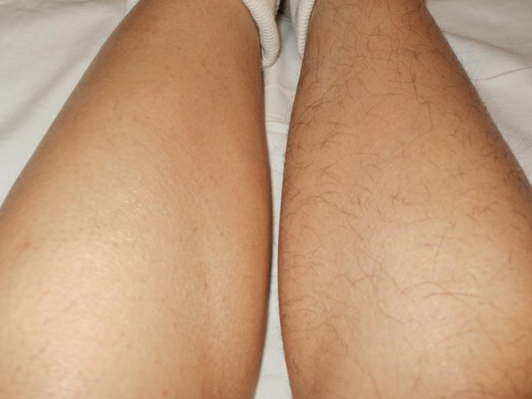 Алопеция голени при атеросклерозе сосудов нижних конечностей