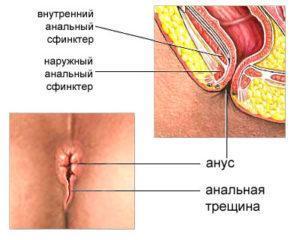 lechenie-analnoy-treshini-spetsialnim-pnevmoballonchikom