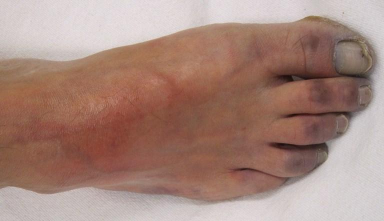 Атеросклероз сосудов нижних конечностей: симптомы и лечение ...