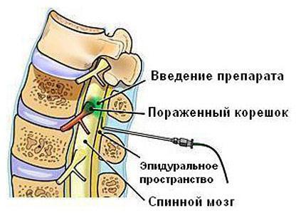 Блокада при остеохондрозе