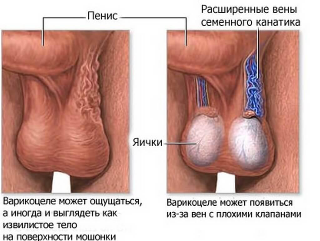Внешние признаки варикоцеле