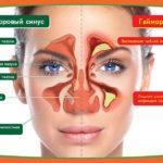 Гайморит: лечение, лекарственные препараты
