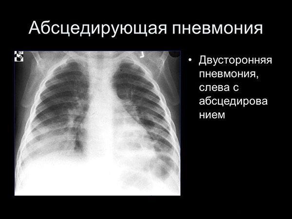 Двусторонняя пневмония на рентгеновском снимке