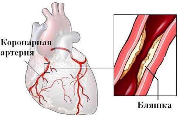 Закупоривание коронарных артерий