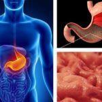 Как лечить гастрит желудка, какие лекарства самые эффективные?