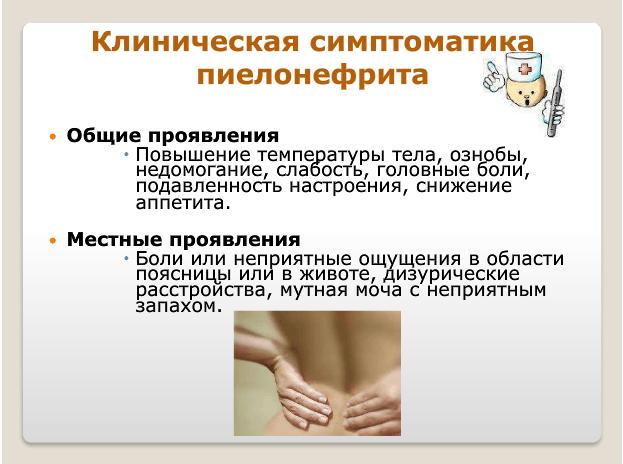 Клиническая симптоматика пиелонефрита