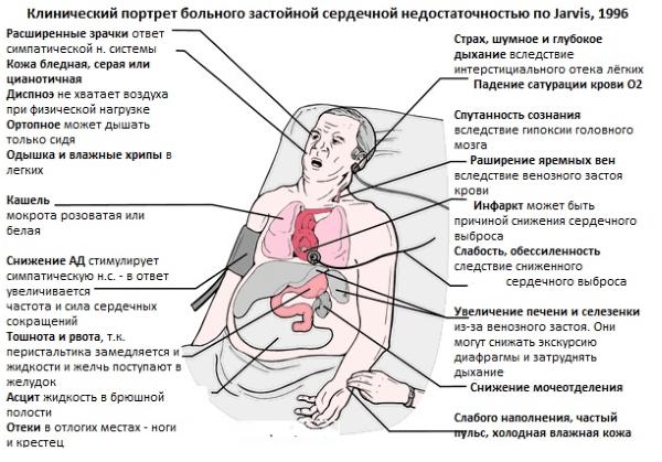 Клинически портрет больного застойной сердечной недостаточностью