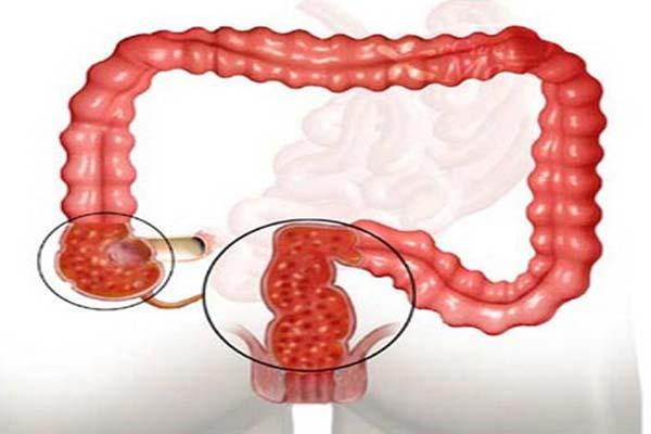 Катаральный колит кишечника хронический, очаговый