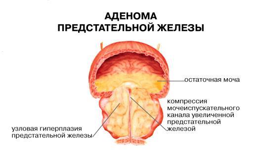 Лечение аденомы простаты без операции: препараты