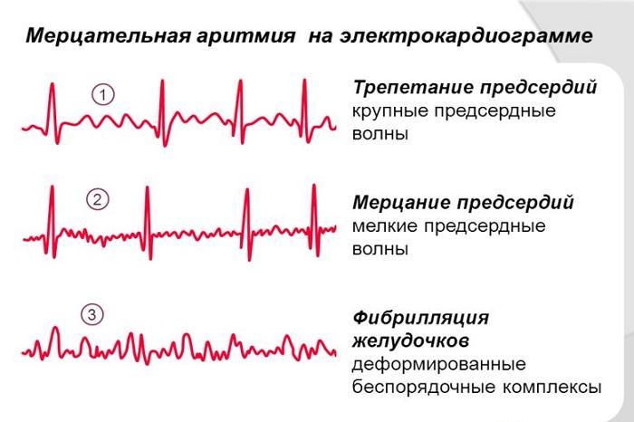 МА на электрокардиограмме