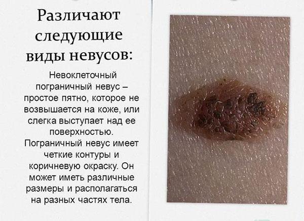Невоклеточный пограничный невус
