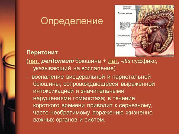 Определение перитонита