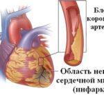 Особенности ишемической болезни сердца у женщин / Кардиология / Medvopros.com