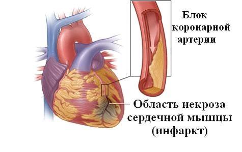 Признаки ишемической болезни сердца у женщин - подробная информация